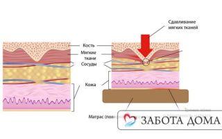 Пролежни под гипсом: признаки, лечение и профилактика