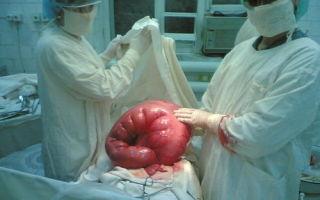 Проблемы с кишечником у лежачих больных: непроходимость, вздутие