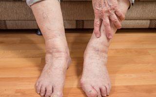 Отеки у лежачих больных: легких, ноги, руки – признаки и лечение