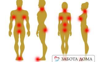 Опрелости у лежачих больных – симптомы, лечение и профилактикаи