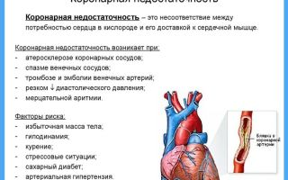 Смерть при острой сердечной недостаточности: симптомы и причины