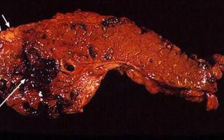Смерть от панкреатита (панкреонекроза): причины и симптомы