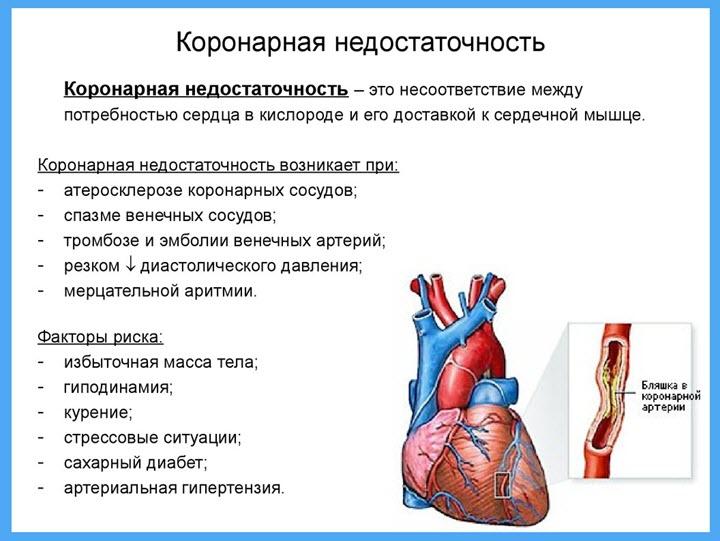 Острая сердечная недостаточность симптомы перед смертью